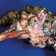 بیماری های پروتوزوآیی